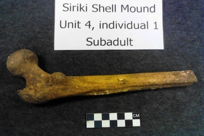 Figure 6. Sub-adult femur of individual 1.