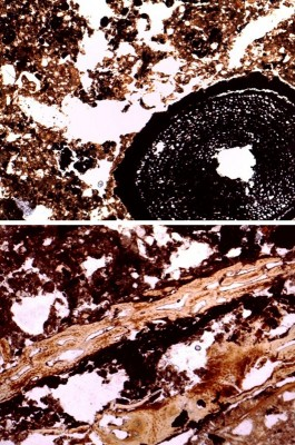 Figure 5. Micrographs showing wood fragments (above), burnt bone fragments and peat residues (below).