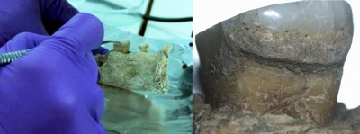 Figure 6. Sampling dental calculus from Vlasac (new excavations) (left); detail of calculus preserved on Mesolithic individual from the same site (right); photographs by E. Cristiani.